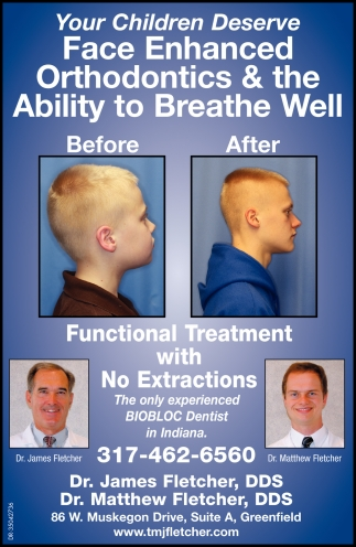 Functional Treatment With No Extractions
