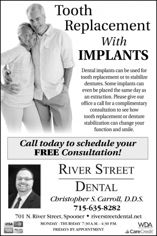 Tooth Replacement With Implants